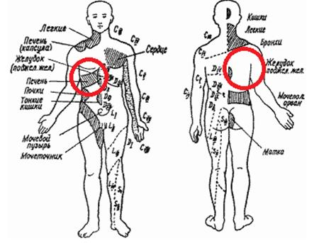Почему болит спина в области лопаток справа